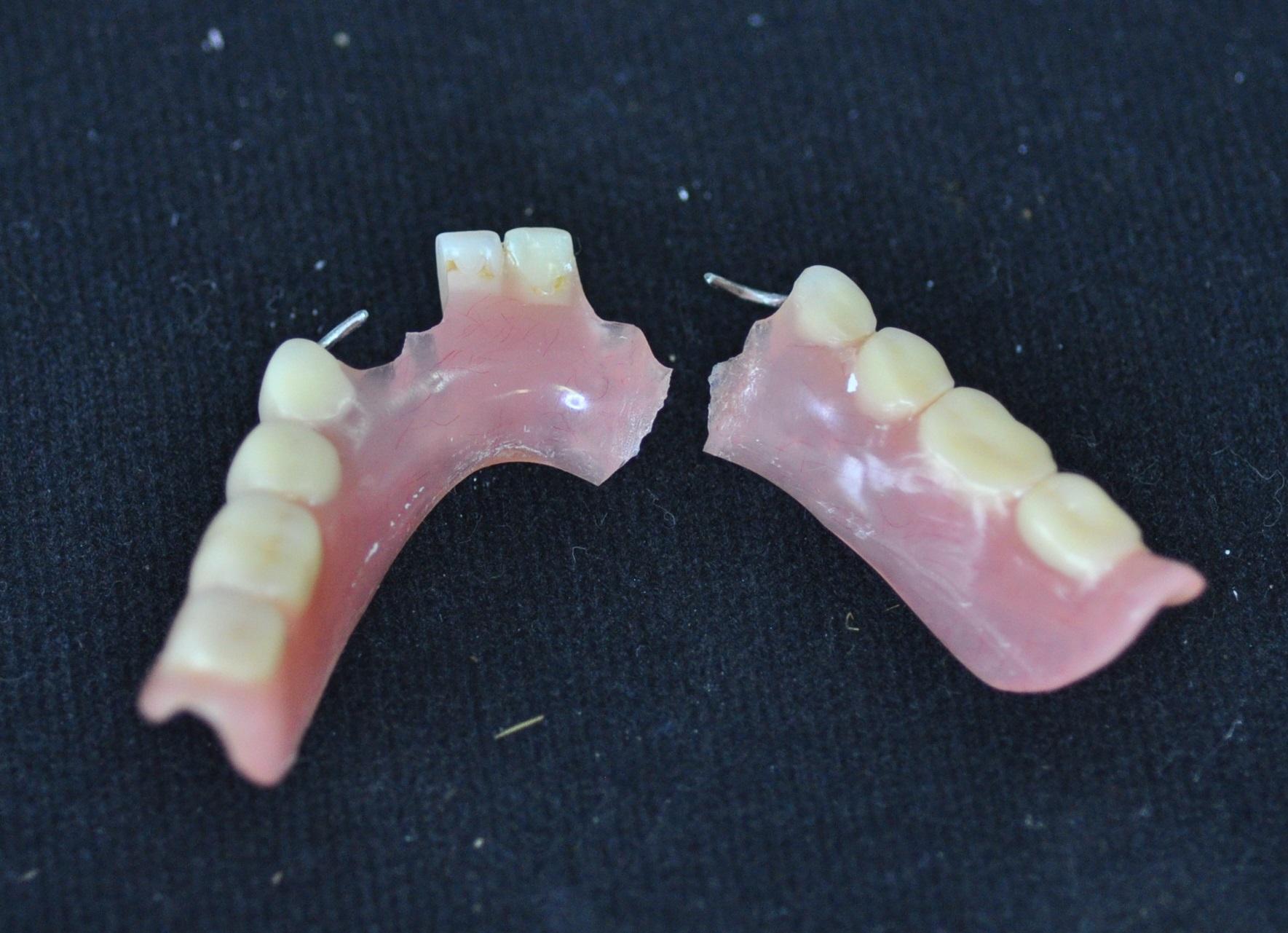 Как отремонтировать зубные протезы в домашних условиях 543