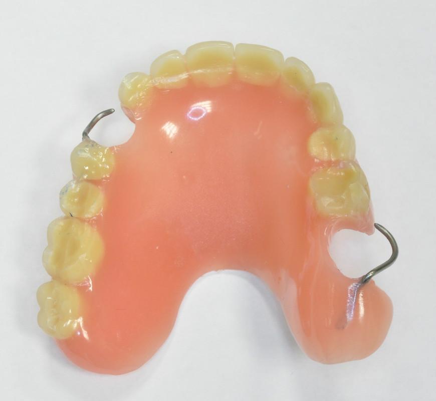 Как отремонтировать зубные протезы в домашних условиях 869